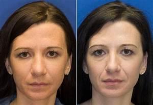Солкосерил гель от морщин отзывы косметологов