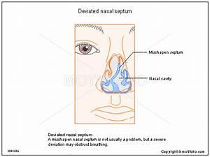 Deviated Nasal Septum Illustrations