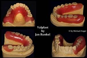 Valplast Prothese Abrechnung : valplast prothesen aus nylon dentalligent blog ~ Themetempest.com Abrechnung