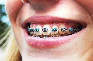 Orthodontic Braces Colors | Braces/Retainer | Pinterest ...
