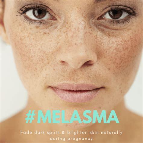 pregnancy skin care fade dark spots naturally