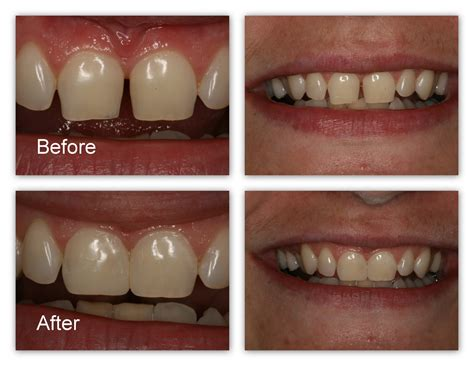 front teeth bonding before and after dental tooth bonding cosmetic dentistry dentistry on