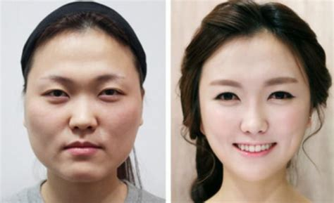 extreme plastic surgery in south korea
