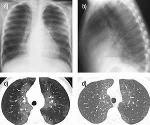 Primary Pulmonary Lymphangiectasia In Infancy And