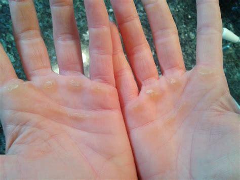 Rough Palms Health Blog