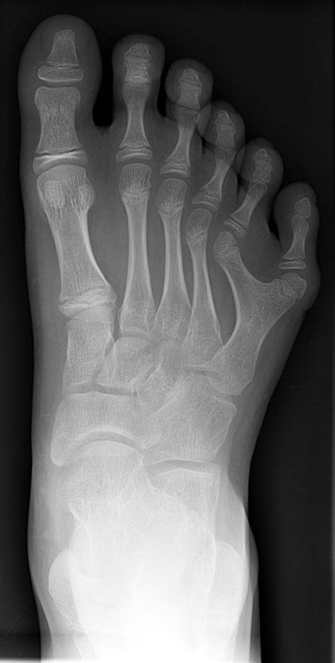 Dedos do pé; Artelho; Artelhos; Dedo do Pé; Dedos dos Pés