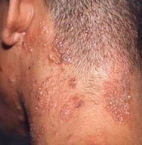 Shingles on Scalp: Symptoms, Pictures, Contagious, No Rash ...