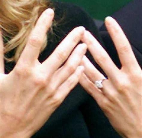 gesundheit laenge der finger zeigt arthritisrisiko  welt