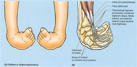 The condition derives its name from the resemblance of the curved foot to the head of a golf club. equinovarus foot - Google Search   Pediatric physical ...