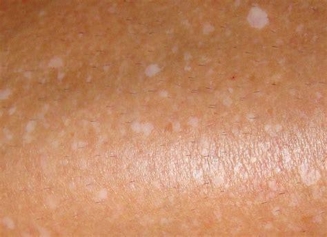 Bultjes die jeuken op de huid