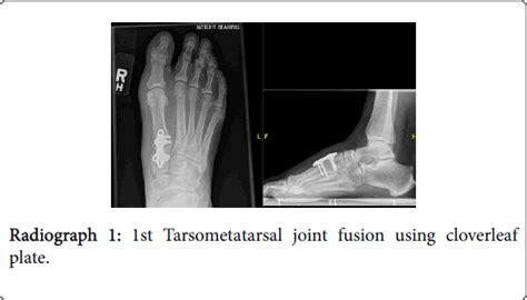 clinical research foot ankle joint fusion