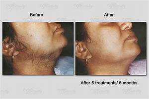 Brazilian Laser Hair Removal Men | OM Hair