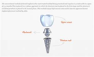 Dental Implants   Dental Implant Treatment At Dental Care ...