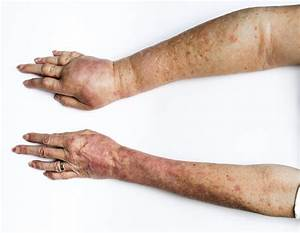 Lymphedema - Cardiovascular Disorders