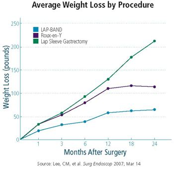 Weighing The Benefits And Risks Of Bariatric Surgery. Dentist In Lexington Ky Cash Back Reward Card. Spanish Classes In Melbourne What Is Sweat. Protective Life Insurance Company Rating. Best Pediatric Colleges Marketing Viral Video. Wireless Internet Tucson Az Briar Rose Drops. Glendale Community College Nursing Az. Stem Cell Therapy For Heart Disease. Verizon Smart Phone Reviews Unix Send Email