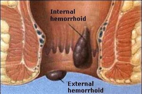 Silent No More Get Help For Your Hemorrhoidspiles
