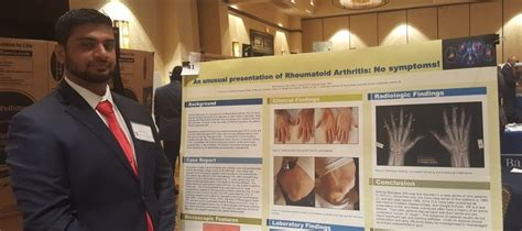 aua alumni research poster selected conference aua