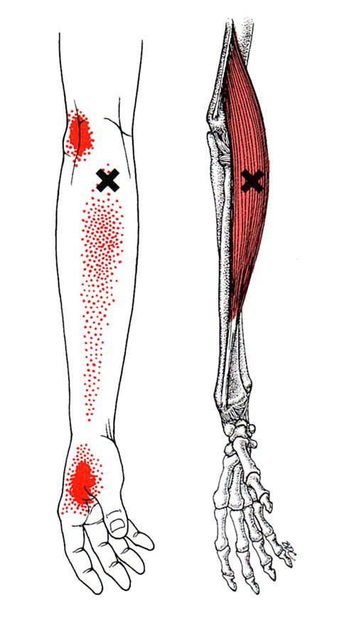 brachioradialis  trigger point referred pain guide