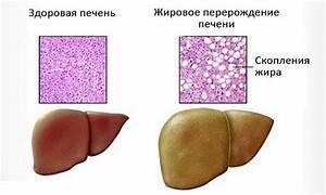 Прием препаратов при увеличении печени