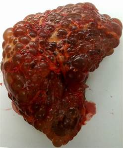 Polycystic Kidney Disease Pictures