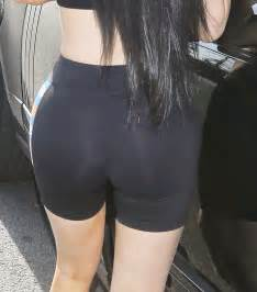 Kylie Jenner Hip Surgery