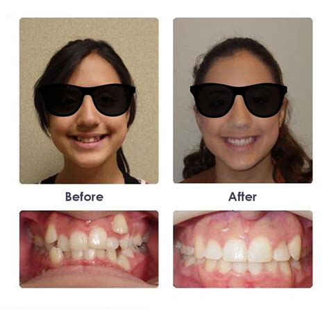 Before & After Braces Photos  Significance Orthodontics. Asian Living Room. Photo Wallpaper For Living Room. Wall Lamps For Living Room. Chesterfield Sofa Living Room. Glass Shelves Living Room. Chairs For Living Room Ikea. El Dorado Furniture Living Room Sets. Living Room Throw Rugs