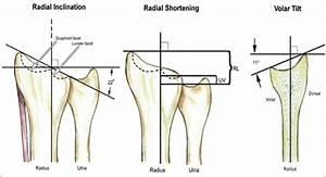 Figure 1: Various tilts and angles at distal radius and ...