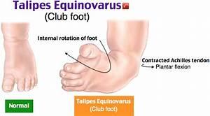 Club Foot - Talipes Equinovarus - Peds