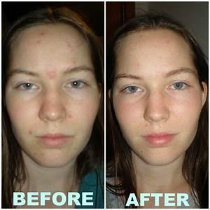 soin acné avene 6000