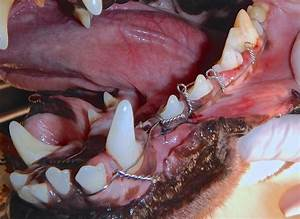How To Repair Non-invasive Jaw Fracture