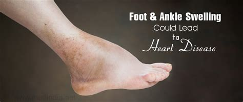 Foot And Ankle Swelling Could Lead To Heart Disease