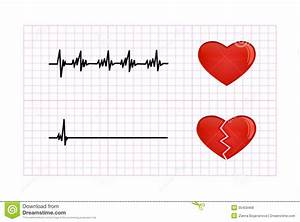 Heartbeat Diagram Illustration Stock Vector