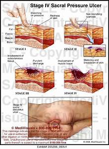 337 best images about systems integumentary on pinterest for Best treatment for pressure sores