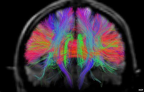 incredible brain scans reveal intricate  workings geekcom