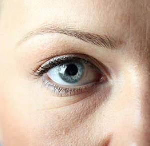 Инъекция от морщин под глазами