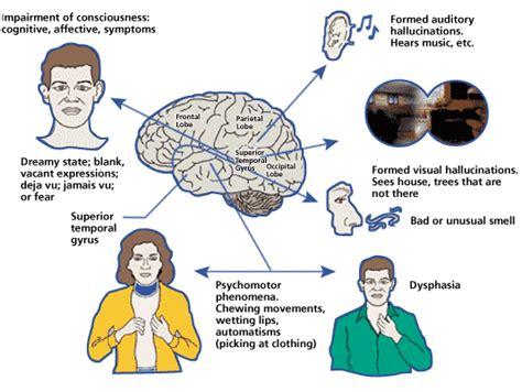 partial complex seizure  symptoms treatment