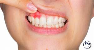 Abscessed Tooth  Causes  Symptoms  And Treatment