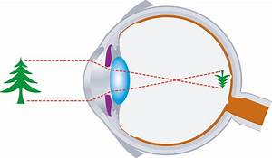 25 Draw The Ray Diagram For Nearsighted People