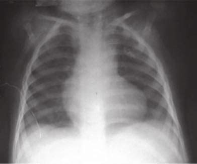 chest radiograph showing boot shaped heart  pulmonary