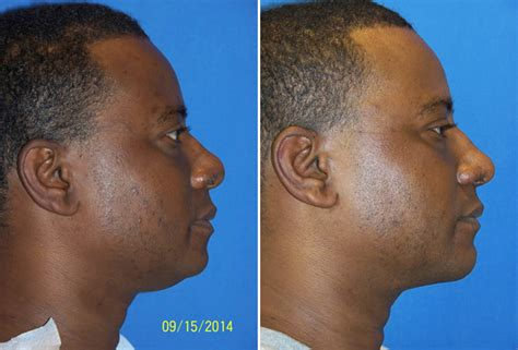 neck liposuction dr  cosmetic surgery