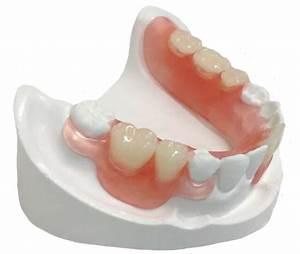 Valplast Prothese Abrechnung : valplast die prothese f r allergiker ~ Themetempest.com Abrechnung