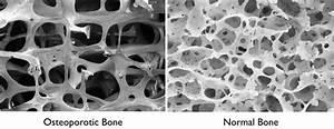 Biodensity Bone Density Therapy Device