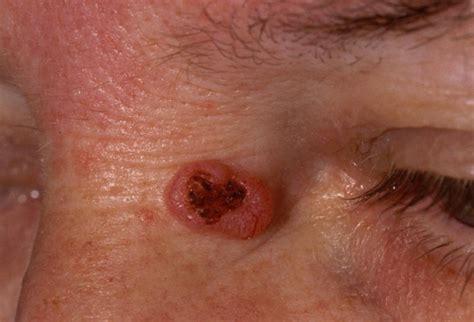 hautarztpraxis dr hempel basaliom