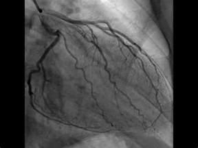 Heart Catheterization Video Cardiac Cath