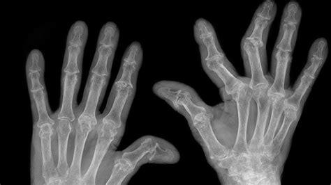 Doe Rã Sumã by Pictures Of Rheumatoid Arthritis Symptoms