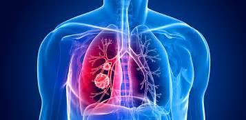 symptome müdigkeit schwäche übelkeit lungenkrebs bronchialkarzinom symptome ursachen verbreitung