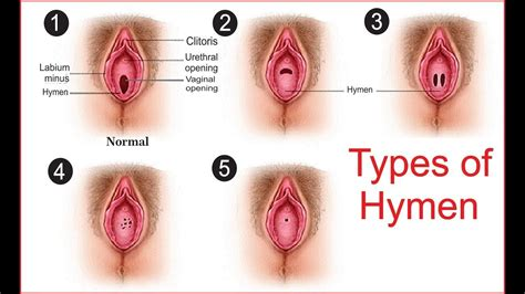 types  hymens diagram anatomy note world