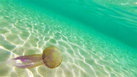 Djegia Nga Kandilat E Detit - Trajtimet Natyrale Të ...