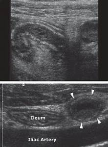 Acute Appendicitis In Ultrasound Image
