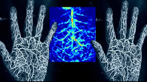 photoacoustic imaging peering   body